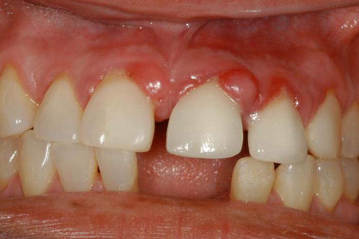 лечение зуба с гранулемой