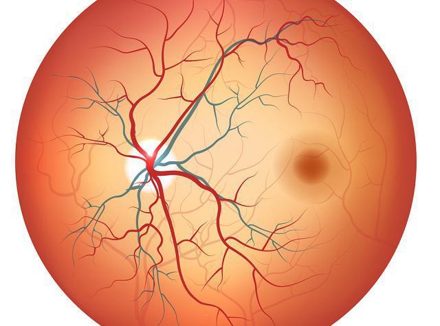 ангиопатия сетчатки обоих глаз что это такое