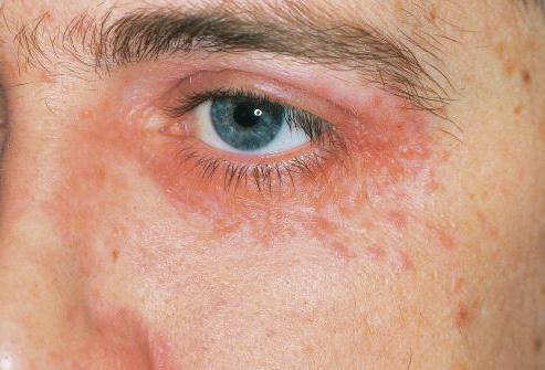атопический дерматит симптомы на лице фото
