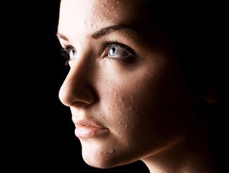 кольцевидная гранулема лечение у взрослых