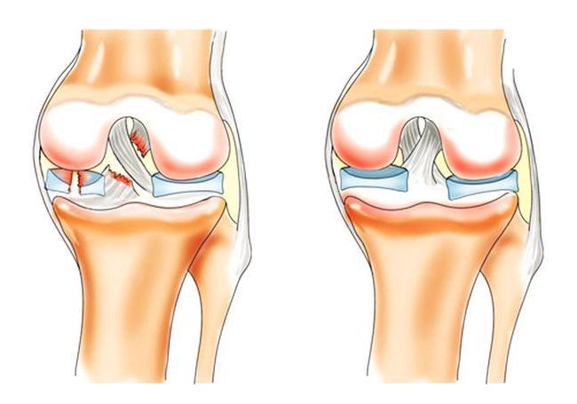 деформирующий артрит лечение