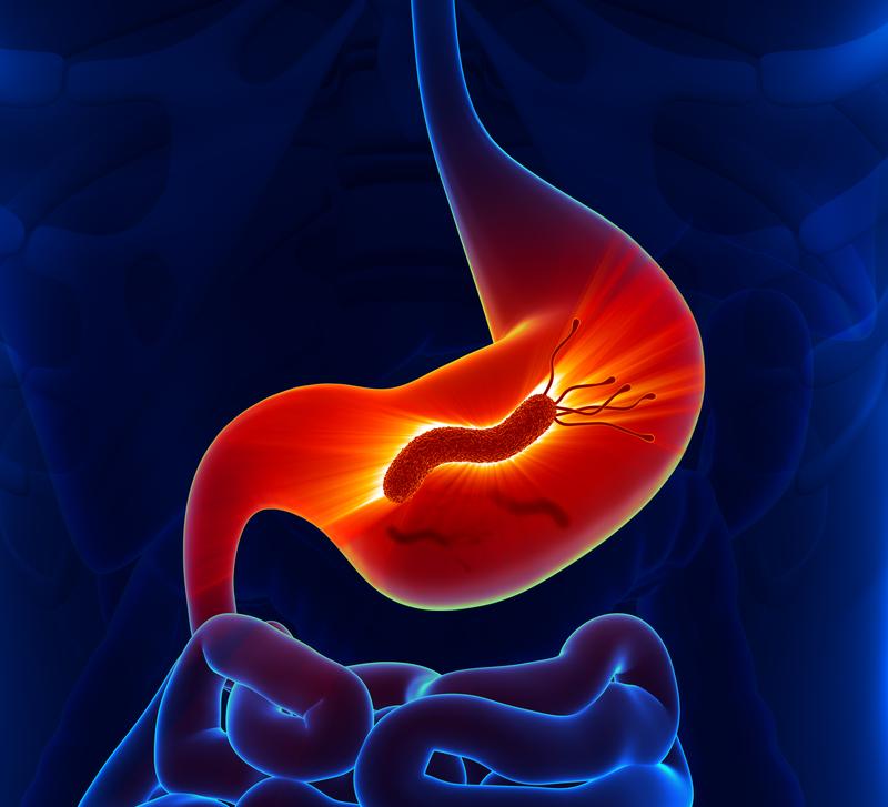 чем снять боль при язве желудка