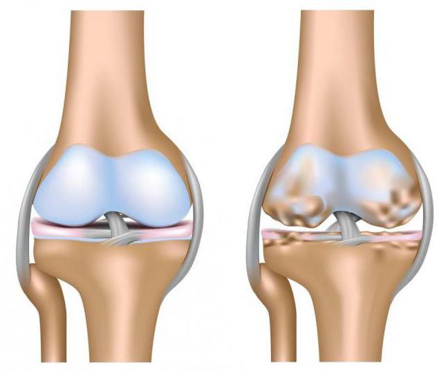 Чем артроз коленного сустава отличается от артрита
