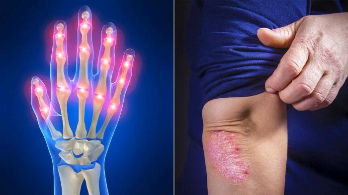 ревматоидный артрит причины симптомы диагностика