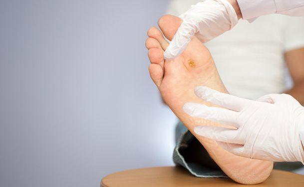 сахарный диабет онемение ног лечение