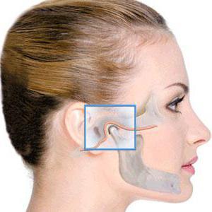 Артрит челюстного сустава лечение