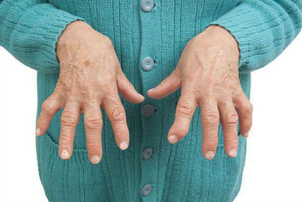 ревматоидный артрит симптомы причины