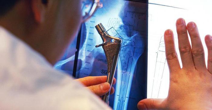 вредные продукты при артрите коленного сустава
