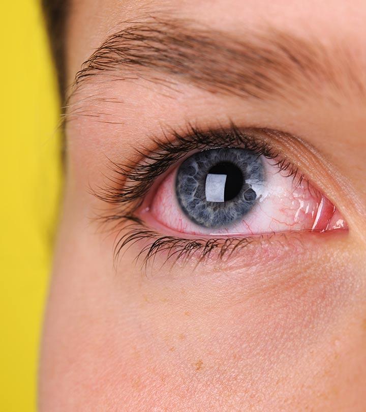 капли для глаз после сварки
