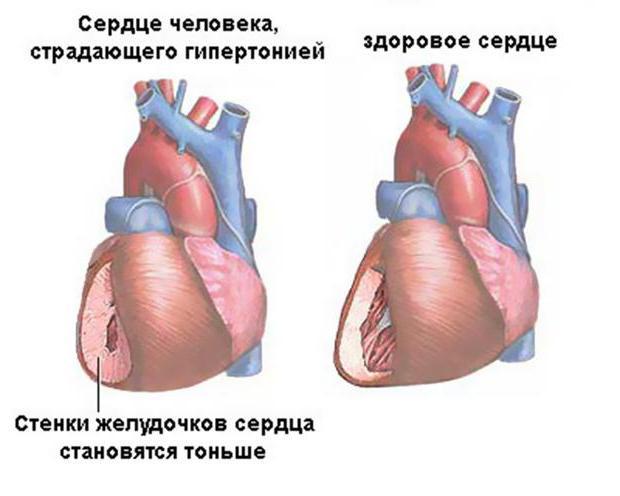 ипертоническая болезнь 3 степени 3 риск