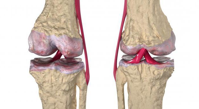 Ревматоидный артрит коленного сустава лечение