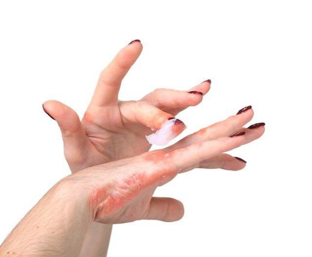 лекарственный дерматит фото лечение