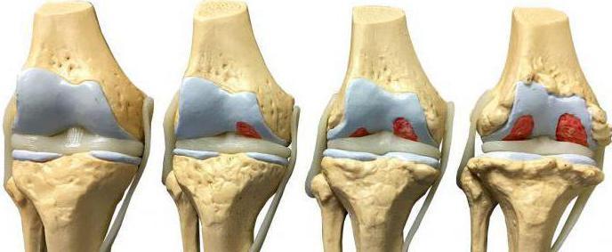 микрокристаллический артрит коленного сустава