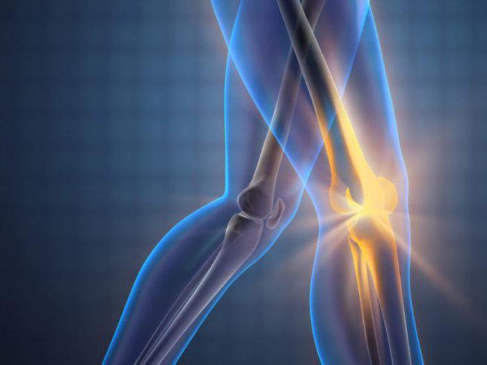 артрит артроз коленного сустава
