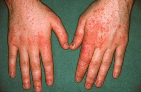 контактный дерматит лечение и симптомы