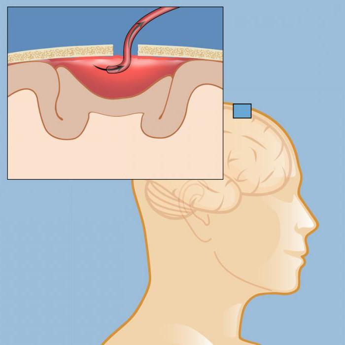 Развитие гематомы головного мозга