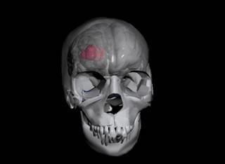 внутримозговая гематома головного мозга