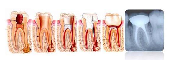 гранулема зуба что это за заболевание