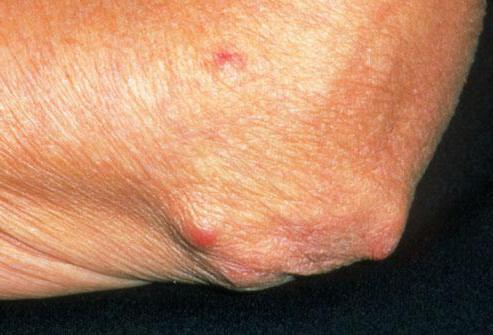 какие упражнения при ревматоидном артрите