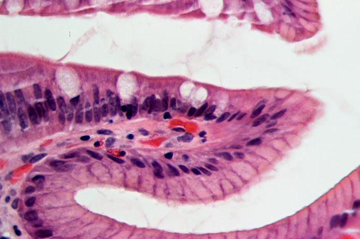 хронический атрофический гастрит можно вылечить