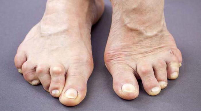 мкб 10 артрит стопы