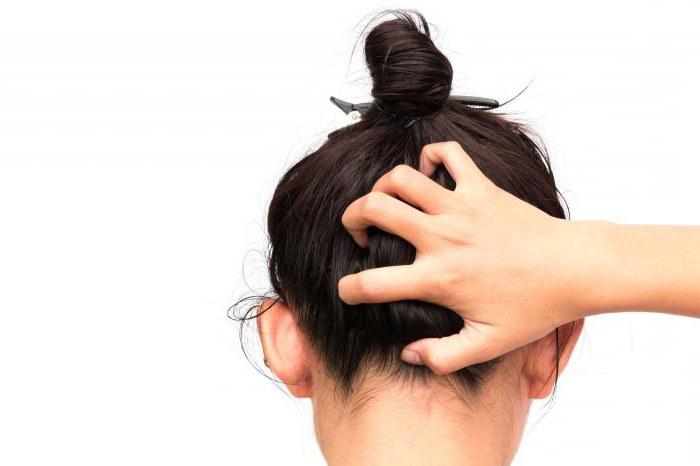 как избавиться от себореи на голове