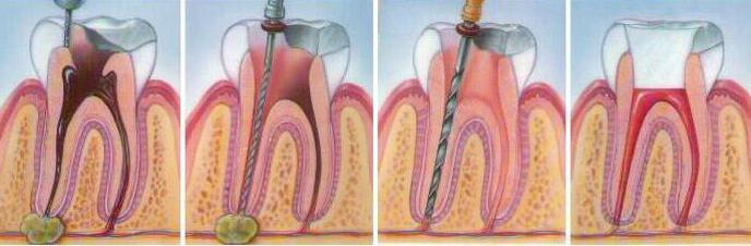 гранулема зуба после удаления