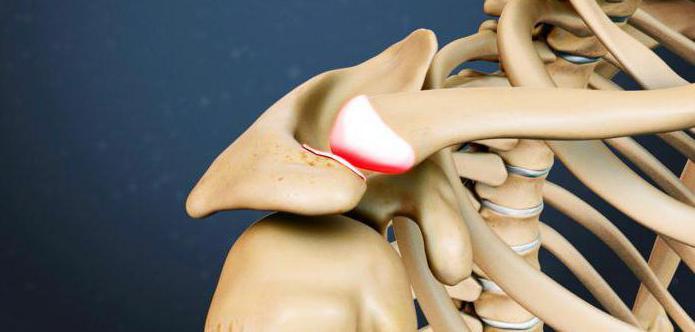 Отличие артрита от артроза