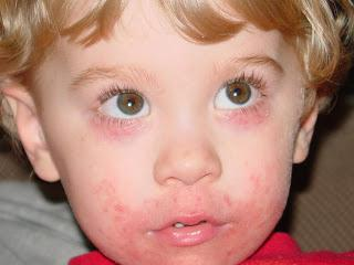 дерматит у рта ребенка
