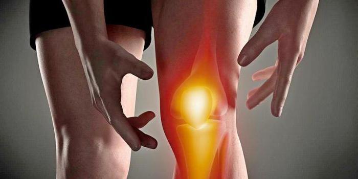 артрит гнойный коленного сустава