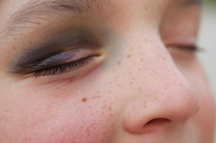 средство от гематом и синяков на лице
