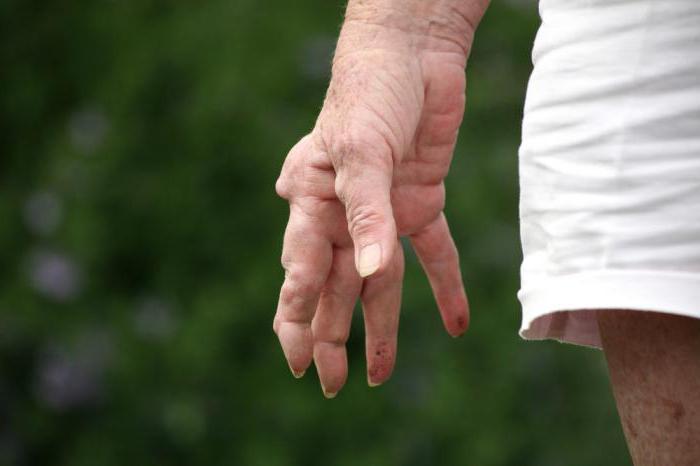 лечение ревматоидного артрита диагностика