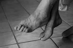 воспаление голеностопного сустава как лечить