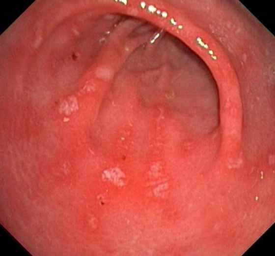 эрозивный гастрит симптомы и лечение