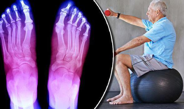 упражнения для кистей рук при ревматоидном артрите