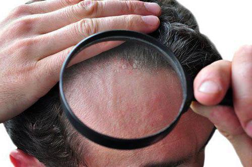 как лечить дерматит на голове