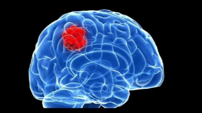 Гематома головного мозга симптомы