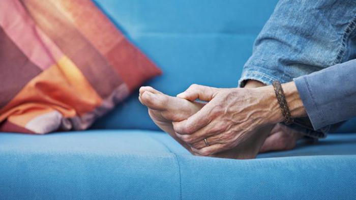 артрит стопы симптомы и лечение