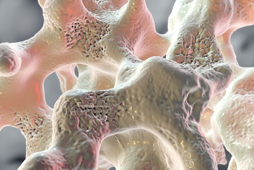 Деформированная костная ткань