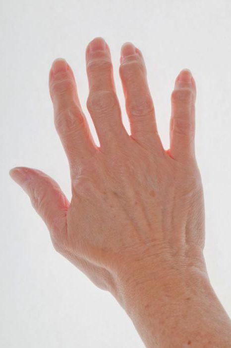 мазь от артрита пальцев рук