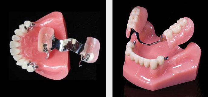 изготовление съемных зубных протез