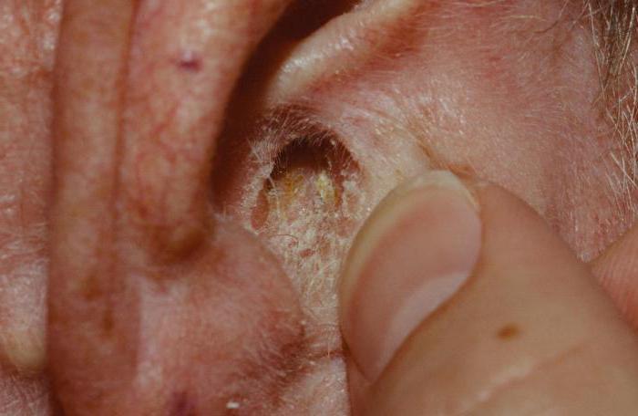 дерматит фото у взрослых