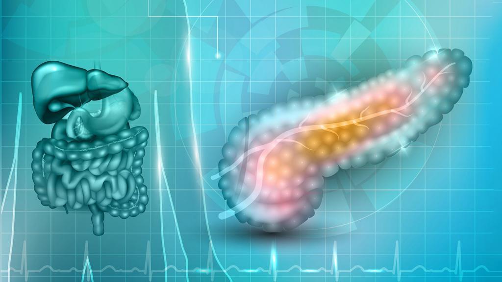 причины панкреонекроза поджелудочной железы
