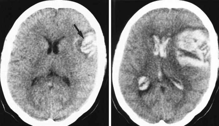 Гематома головного мозга последствия
