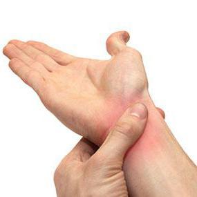 блуждающий артрит лечение лекарствами