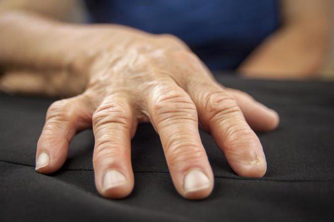 артрит суставов пальцев рук лечение