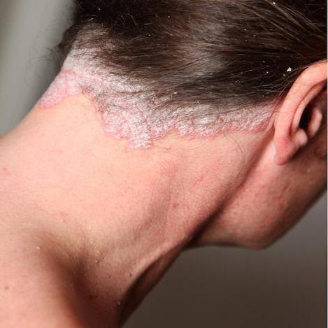 себорейный дерматит на лице и голове