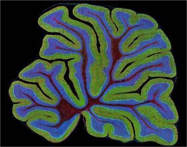 поздняя мозжечковая атаксия продолжительность жизни
