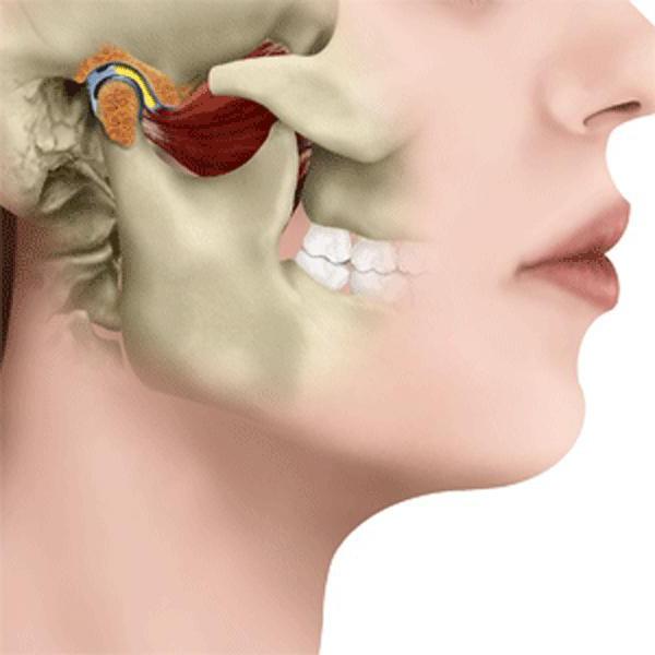 артрит внчс лечение