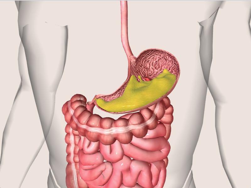 как проявляется язва желудка симптомы